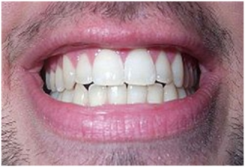 What Do Your Teeth Say about You