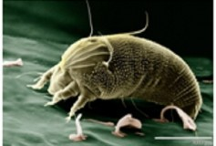 Poor Wee Mites? Not Really – Here's How to Deal with Pesky Allergens
