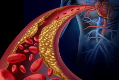 What you should know about cholesterol: why there is a good one and a bad one and how to regulate them